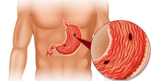 poletage kae ja ola rasva tugevuse koolitus keha rasva kadu