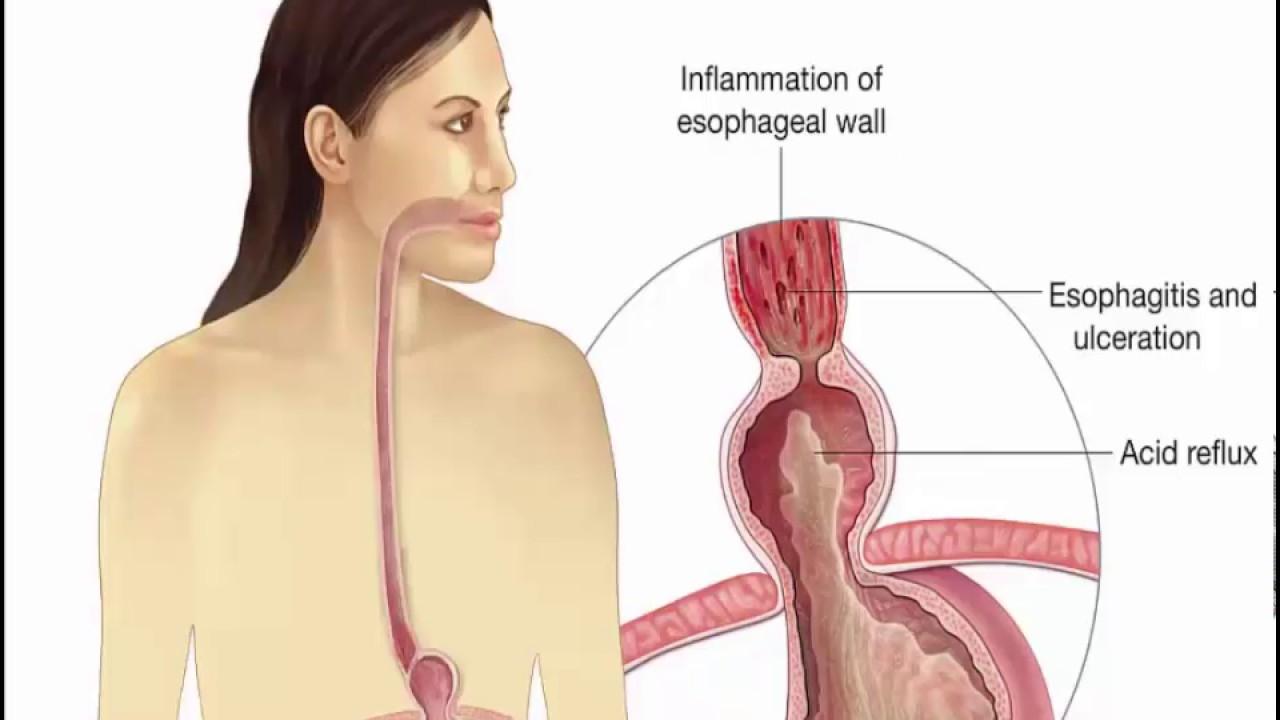 kiire kaalulangus hiaal hernia