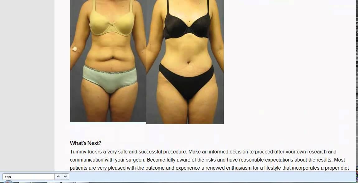 kaalulangus ei tummy tuck steroidcom fat loss