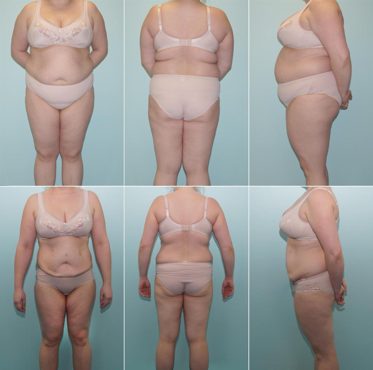 uleliigne naha ennetamine kaalulangus kas kiire jalgsi poleb rasva