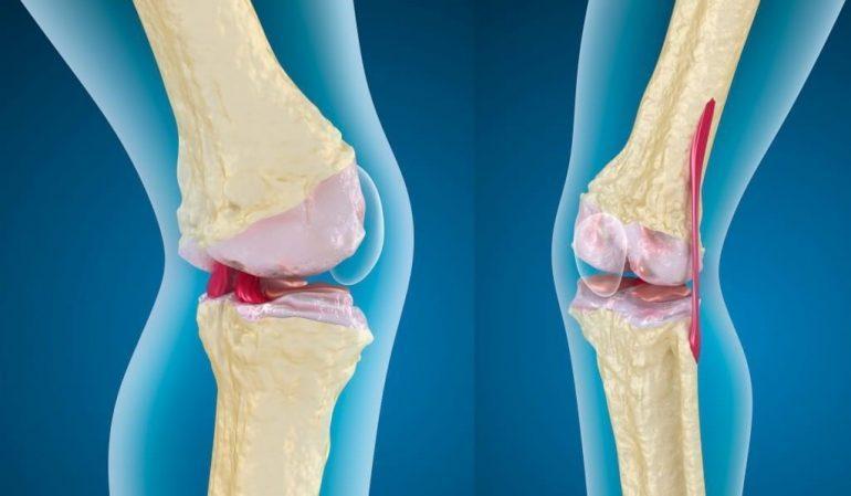 osteoartriit ja kaalulangus