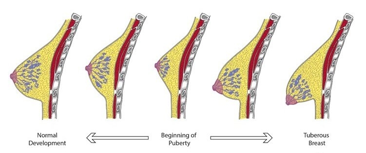 rindade muutused kaalulanguse tottu