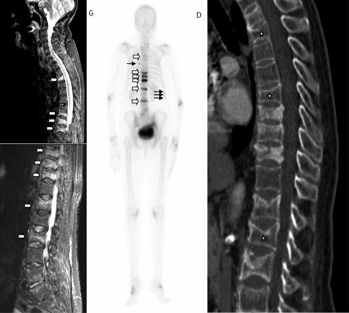 rapid kaalulangus reumatoidartriit 7 nadala rasva kadu